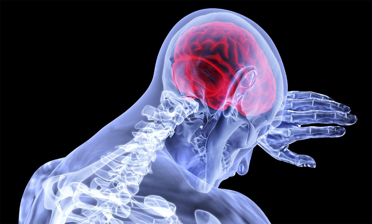 O Acidente Vascular Cerebral (AVC) do tipo isquêmico é a principal causa de mortes e invalidez no Brasil